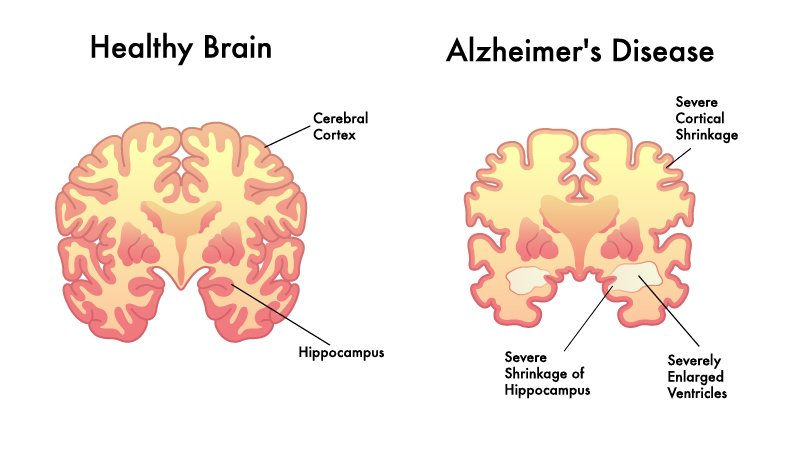 Illustration of healthy human brain and alzheimer disease on white background
