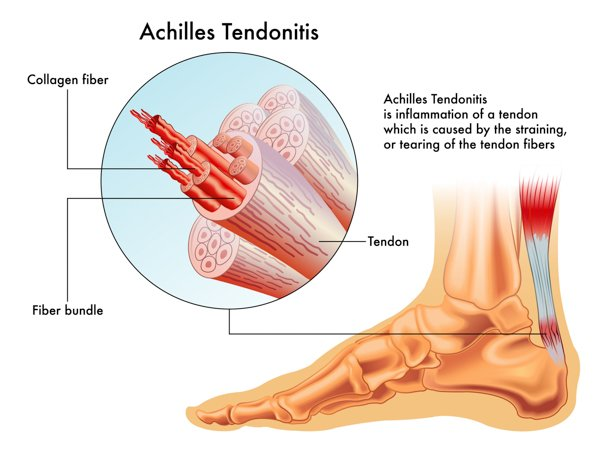 Archilles Tendonitis Illustration