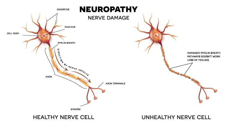 Healthy vs Unhealthy Neuropathy Nerve cells