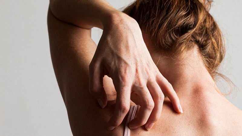 Woman Scratching her back due to allergy